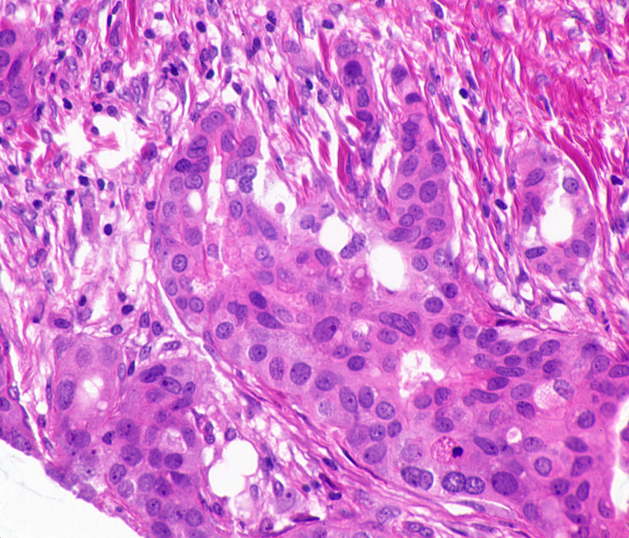 Histopathological Image Sample 1